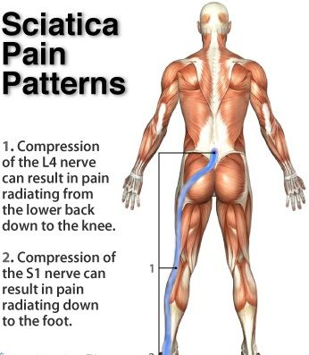 sciatic pain chart